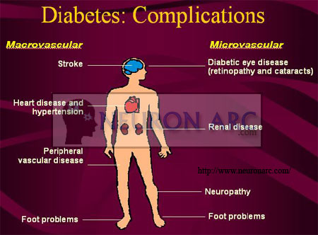 Chronic complications of Diabetes Mellitus (DM)