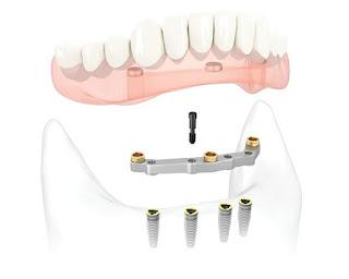 Trồng răng all in one là gì?