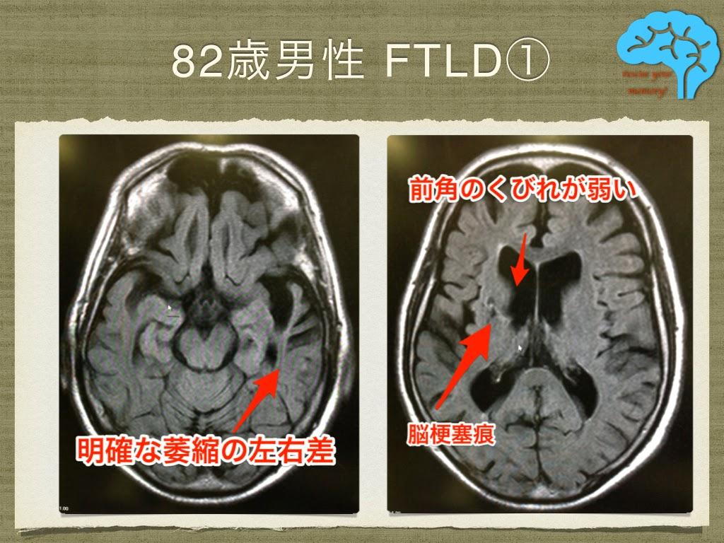 意味性認知症 82歳男性 MRIの左右差