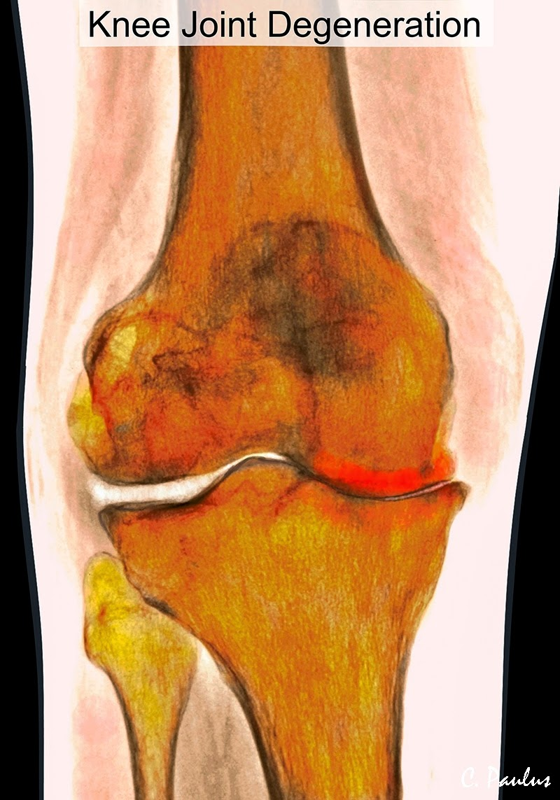 AP Color Knee X-Ray Image of severe Degenerative Joint Disease