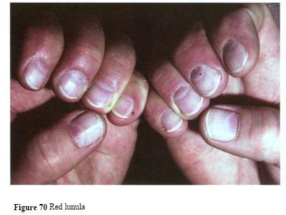 What does it mean when your finger nails have deep grooves in them
