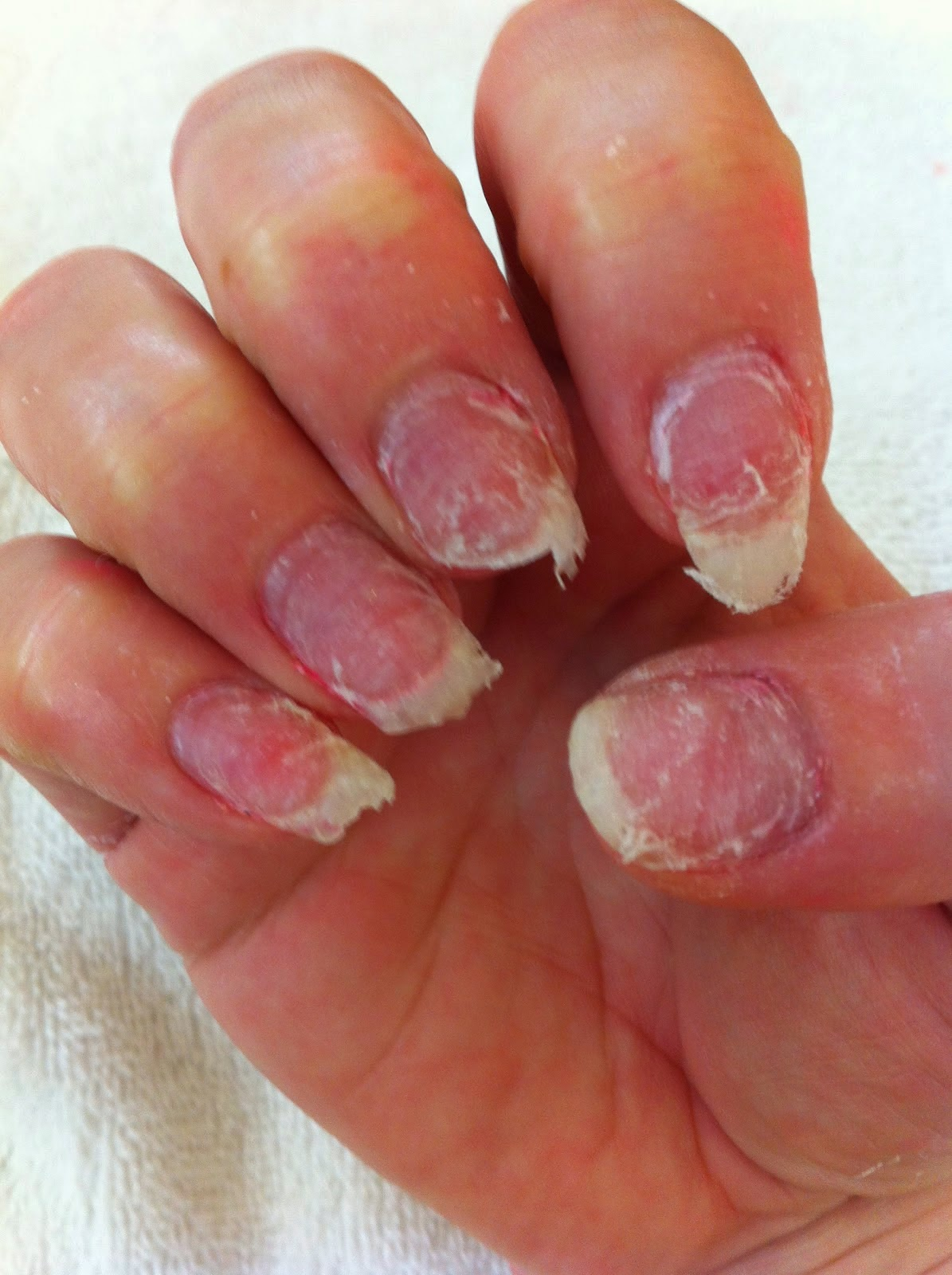 Claws with Class: Why Acrylic Nails Suck