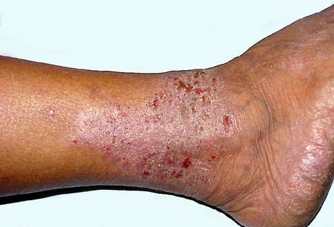 where is eczema most common