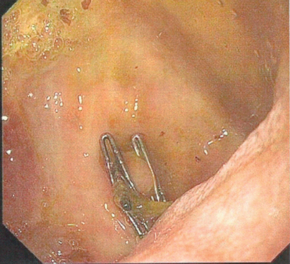 medical journals : large duodenal bulb ulcer - cystic duct clips, Human Body