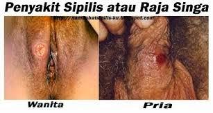 Penyakit Sipilis Pria Dan Wanita