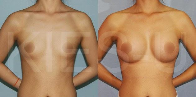 breast pigeon Augmentation breast