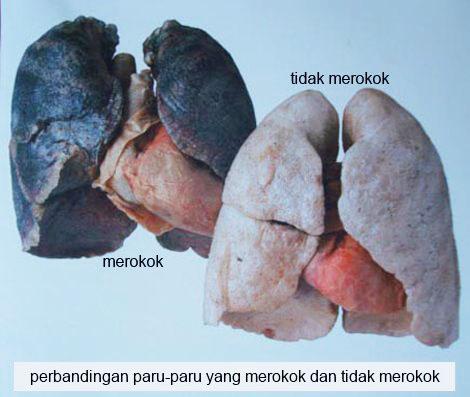 http://3.bp.blogspot.com/-QgxWTAOYsbw/TrqZ9ltDCLI/AAAAAAAAAng/YUtiPWGtOts/s1600/paru-paru+perokok-tidak+merokok.jpg