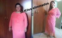 Antes   &   Depois
