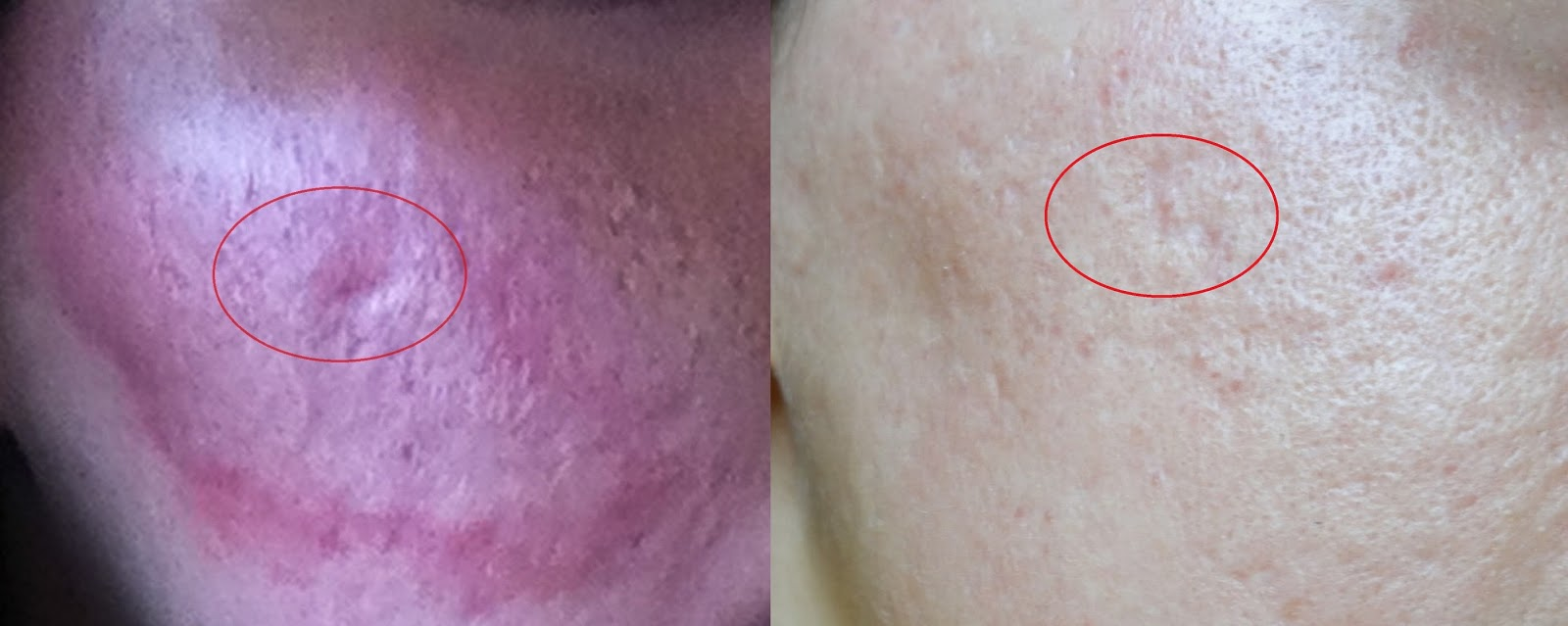 Laser viso acne cicatrici foto prima e dopo