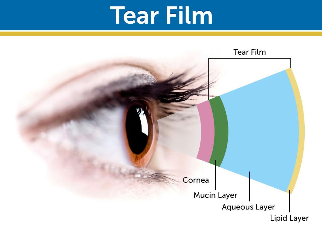 Refresh Brand - Allergan - Dry Eye