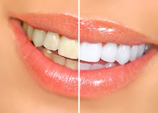 Rid of Yellow teeth