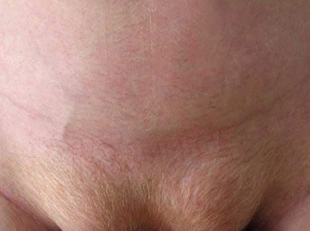 Βουβωνοκήλη - Συμπτώματα
