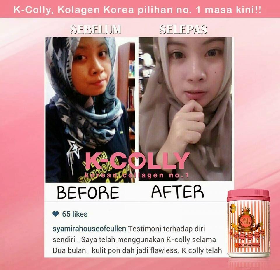 K Colly Collagen Harga produk K- Colly Sweet 17