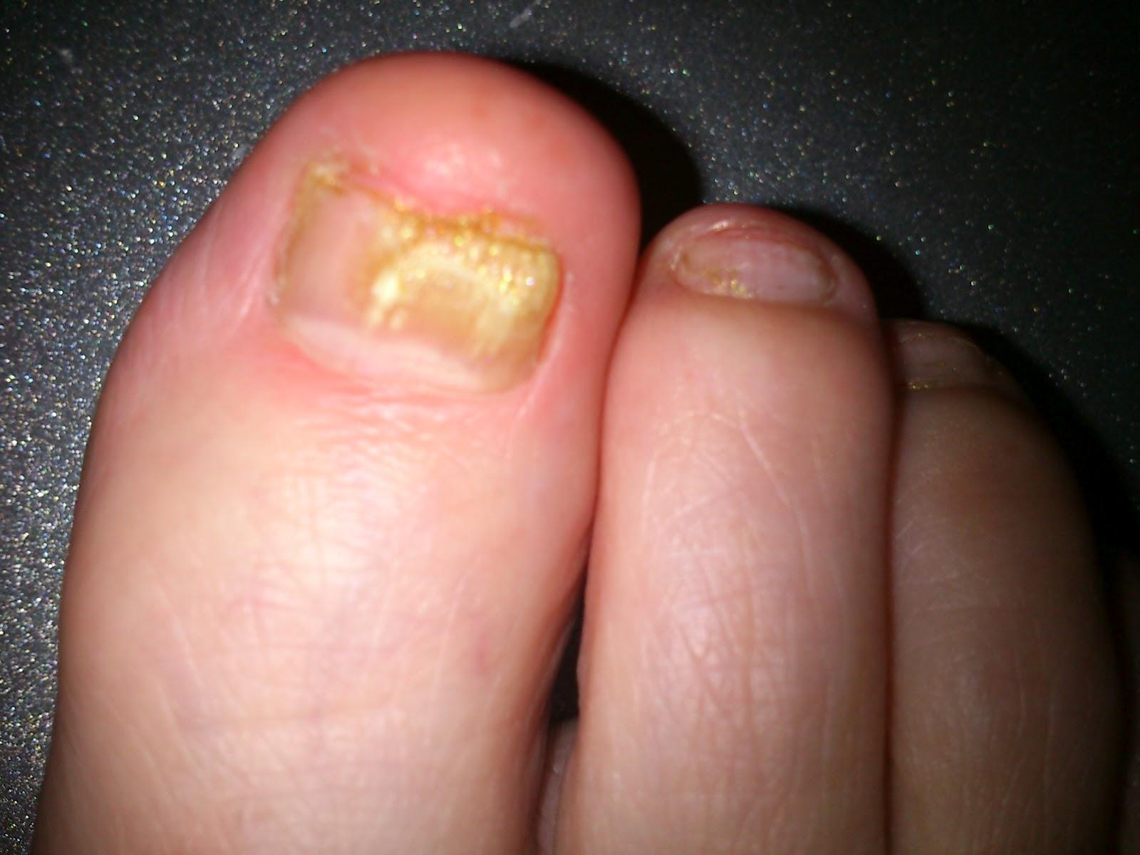 Bestys Beauty Bits: Scholl Fungal nail Treatment 3.8 ml