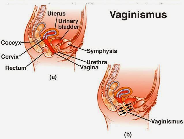 யோனி, பெண் குறி இறுக்கம்,சிறப்பு சிகிச்சை மருத்துவமனை, வேளச்சேரி, சென்னை, Tightness in Vagina, Vaginismus Specialty Treatment Hospital, Velachery, Chennai, Tamilnadu