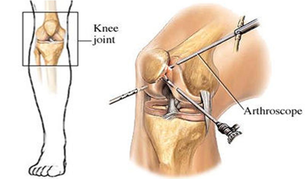курс артроскопии коленного сустава