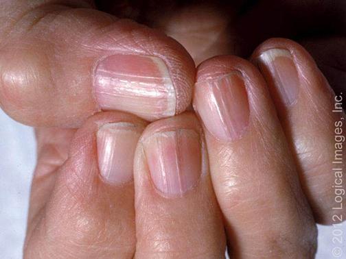 El hongo sobre las uñas de los pies el tratamiento los preparados el precio