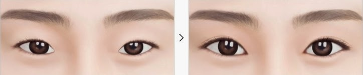 Operasi kelopak mata ganda + epicanthoplasty di klinik operasi plastik Wonjin