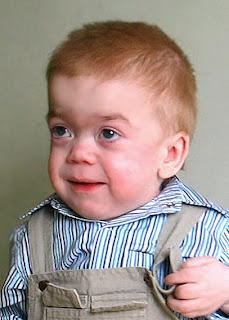 Hurler Syndrome - Genetic Disorders Blog Articles