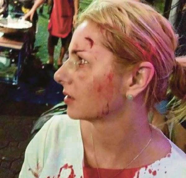 Sakit dapat malu pun dapat Gadis berlumuran darah bergusti dengan bapok