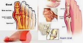 Treat Gout