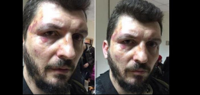 Αντιεξουσιαστές ξυλοκόπησαν μαθητή που είχε καταγγείλει μαρξιστική προπαγάνδα στα σχολεία!