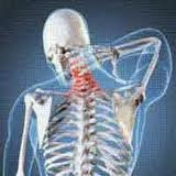 Obat Herbal Pengapuran Tulang Belakang