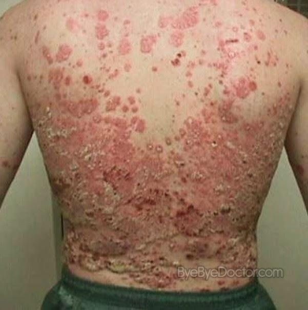 http://aldipengobatanherbal13.blogspot.com/2015/05/cara-efektif-mengobati-psoriasis-secara.html