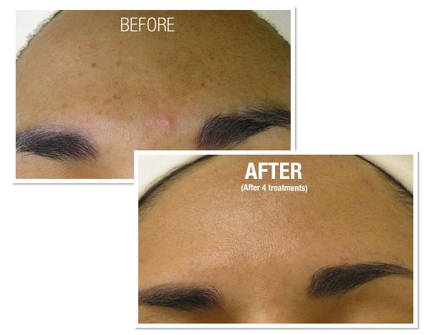 Repairing facial sun damage