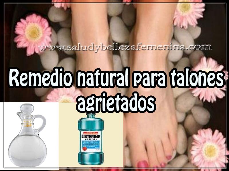 Remedios y tratamientos , belleza , remedio natural para talones agrietados