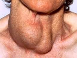 penderita hipertiroidisme