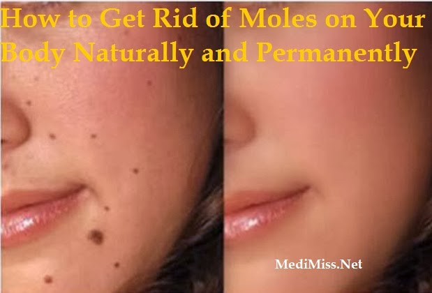 How To Get Rid Of Moles On Your Body Naturally And