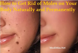 How to Get Rid of Moles on Your Body Naturally and Permanently