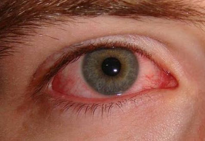 Curing Pink Eye Or Conjunctivitis Naturally Using Home Remedies