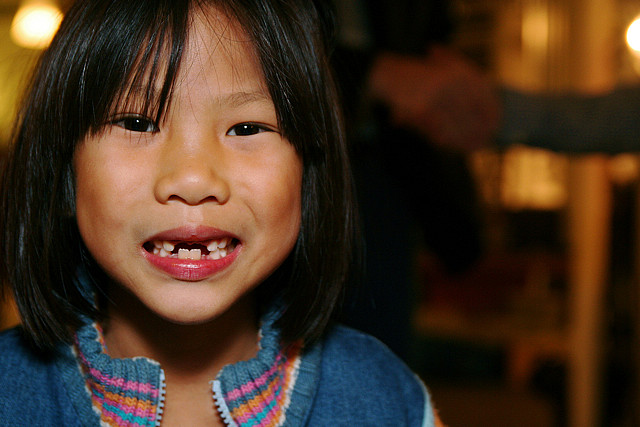 A girl with missing teeth