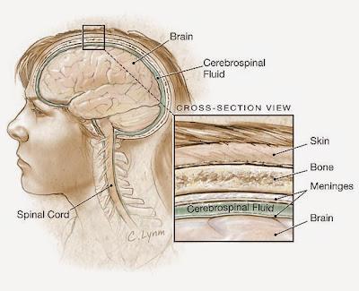 http://obatmeningitisuntukanak.blogspot.com/2014/11/jenis-jenis-penyakit-meningitis.html