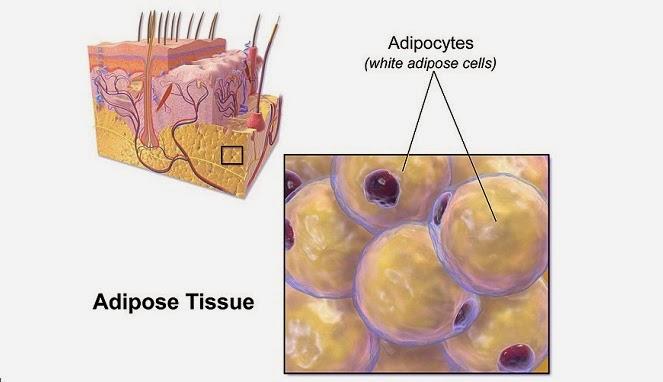 Pengertian Kolesterol Tinggi
