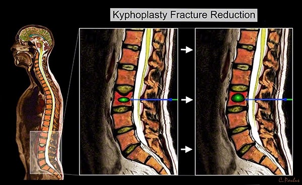Lumbar color MRI Image of a Kyphoplasty Procedure