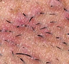 أسباب نمو الشعر تحت الجلد وطرق العلاج