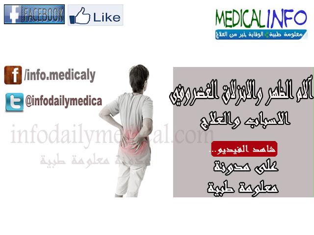 آلام الظهر والانزلاق الغضروفي..الاسباب والعلاج