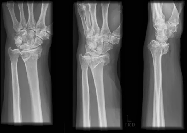 fractures adults Spiral in