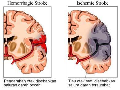 Ischaemic stroke dan haemorrhagic stroke adalah dua jenis angin ahmar