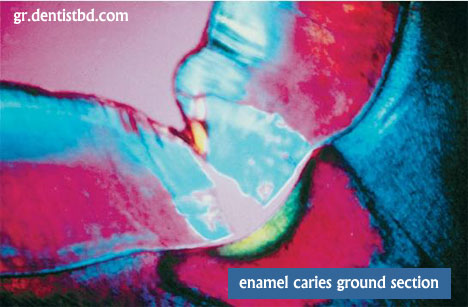 ENamel caries ground sectio Zones of enamel caries : Histopathology of Enamel Caries