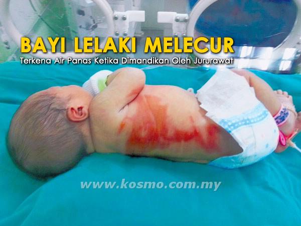 Cuai Bayi Baru Dilahirkan Melecur Ketika Dimandikan Jururawat