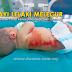Bayi Baru Dilahirkan Melecur Ketika Dimandikan Jururawat