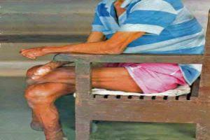 Maladie de Lèpre,La lèpre (ou maladie de Hansen) est une maladie infectieuse chronique due à Mycobacterium leprae (une bactérie proche de l'agent responsable de la tuberculose identifiée par le Norvégien Gerhard Armauer Hansen en 1873) touchant les nerfs périphériques, la peau et les muqueuses, et provoquant des infirmités sévères. Elle est endémique dans certains pays tropicaux (en particulier d'Asie). La lèpre est une maladie peu contagieuse.La lèpre fut longtemps incurable et très mutilante, entraînant en 1909, à la demande de la Société de pathologie exotique, « l'exclusion systématique des lépreux » et leur regroupement dans des léproseries comme mesure essentielle de prophylaxie. Aujourd'hui traitable par les antibiotiques, des efforts de santé publique sont faits pour le traitement des malades, l'équipement en prothèse des sujets guéris et la prévention.