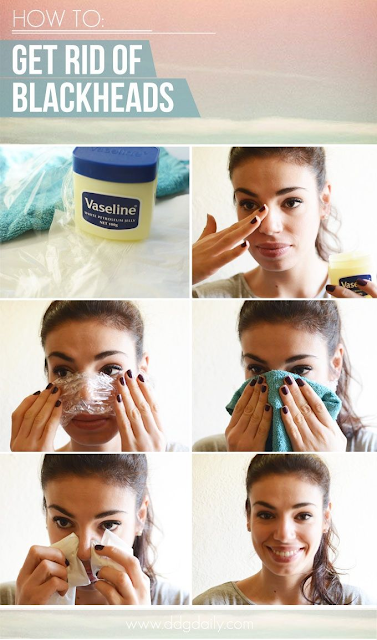 DIY How to get rid of blackheads at home