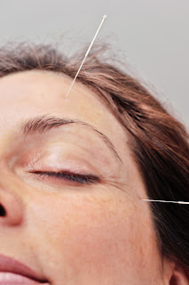 Acupuncture might help with seasonal allergies
