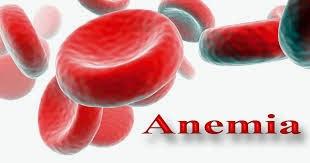 Ini Dia Makanan penangkal anemia