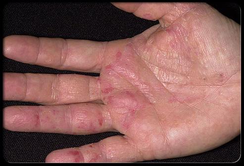 Le lichen rose et atopitchesky la dermatite chez